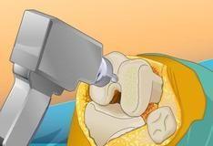 Игра Virtual Knee Surgery