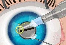 Игра Операция на глаза