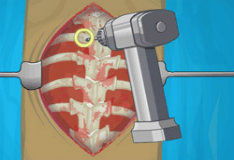 Игра Хирургическое лечение сколиоза
