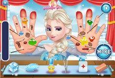 Игра Вылечи руки Эльзы
