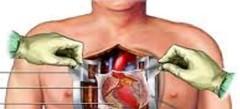 Игры Операция на сердце онлайн бесплатно