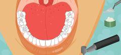 Игры Лечить зубы онлайн бесплатно